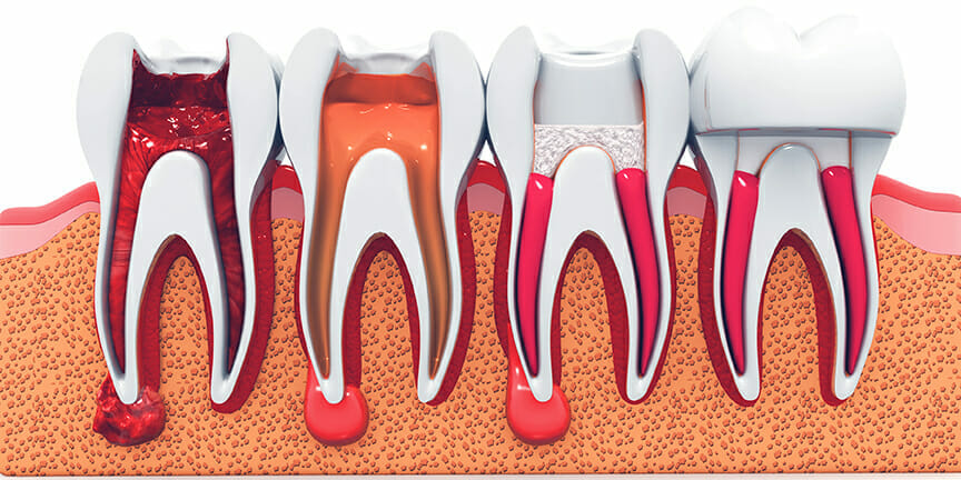 stages of a root canal
